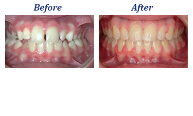 Blue Wave Orthodontics Darien CT Rye NY Smile Gallery Case 1