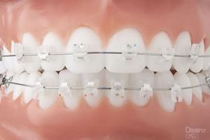 Blue-Wave-Orthodontics-Rye-NY-Darien-CT-Clear-Braces