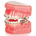 Blue-Wave-Orthodontics-Rye-NY-Darien-CT-Herbst-Appliance