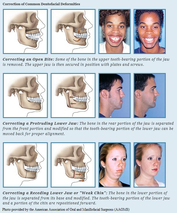 Blue Wave Orthodontics Rye NY Darien CT Surgical Orthodontics
