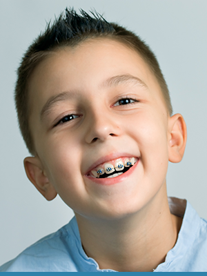 Blue Wave Orthodontics Featured Image Blue Wave Darien CT RYE NY 14