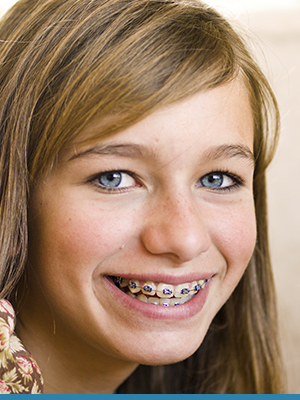 Blue Wave Orthodontics Featured Image Blue Wave Darien CT RYE NY 20