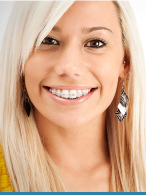 Blue Wave Orthodontics Featured Image Blue Wave Darien CT RYE NY 21