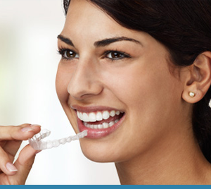 Blue Wave Orthodontics Orthodontics Featured Image Blue Wave Darien CT RYE NY Invisalign 02